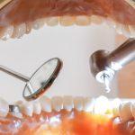 虫歯の治療にかかる時間は?すきま時間を使って虫歯を治す